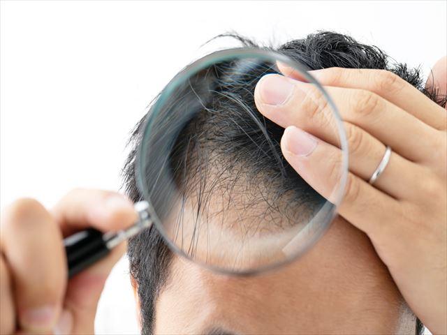 agaとは?大勢の男性が悩む薄毛の原因と対策は?